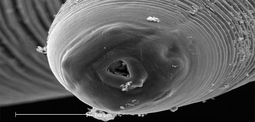 anisakis-parasito-anisakismicroscopio-
